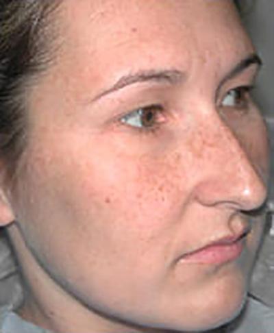 rhinoplasty-surgery-nose-job-los-beverly-hills-before-oblique-dr-maan-kattash2