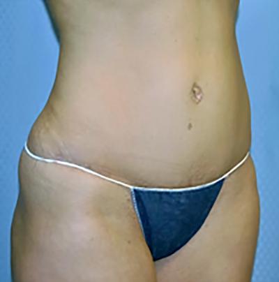 tummy-tuck-cosmetic-surgery-abdominoplasty-los-angeles-woman-after-oblique-dr-maan-kattash
