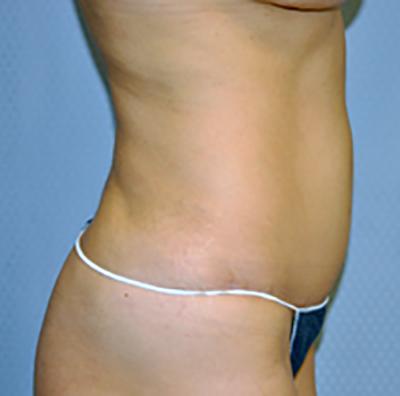 tummy-tuck-cosmetic-surgery-abdominoplasty-los-angeles-woman-after-side-dr-maan-kattash