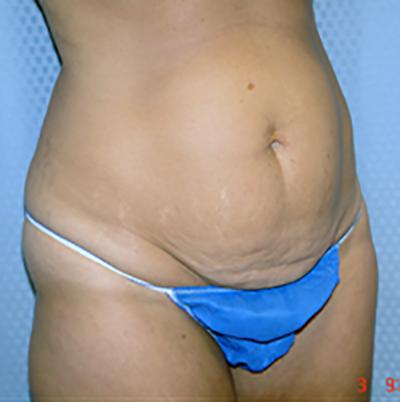 tummy-tuck-cosmetic-surgery-abdominoplasty-los-angeles-woman-before-oblique-dr-maan-kattash