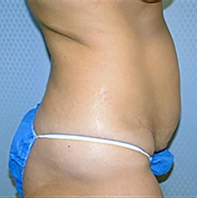 tummy-tuck-cosmetic-surgery-abdominoplasty-los-angeles-woman-before-side-dr-maan-kattash