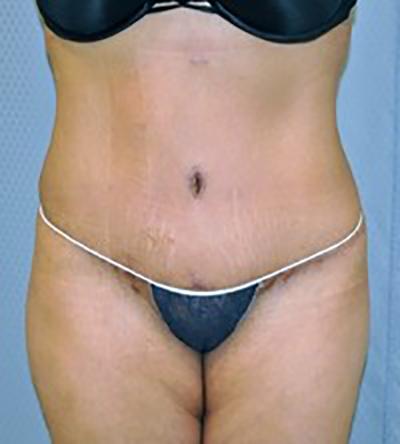 tummy-tuck-cosmetic-surgery-abdominoplasty-rancho-cucamonga-woman-after-front-dr-maan-kattash