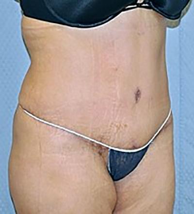 tummy-tuck-cosmetic-surgery-abdominoplasty-rancho-cucamonga-woman-after-oblique-dr-maan-kattash