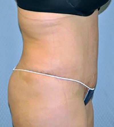 tummy-tuck-cosmetic-surgery-abdominoplasty-rancho-cucamonga-woman-after-side-dr-maan-kattash