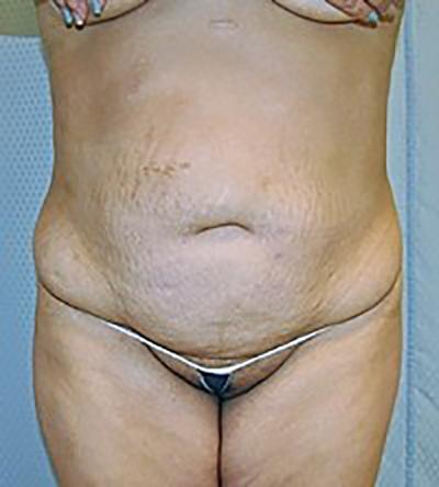tummy-tuck-cosmetic-surgery-abdominoplasty-rancho-cucamonga-woman-before-front-dr-maan-kattash