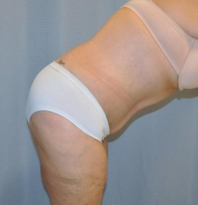tummy-tuck-cosmetic-surgery-abdominoplasty-redlands-woman-after-bend-dr-maan-kattash