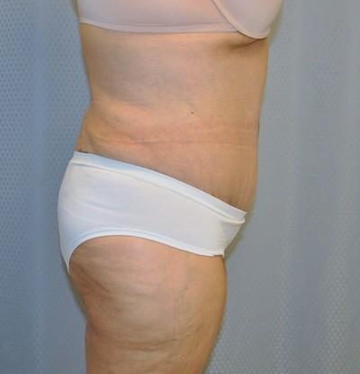 tummy-tuck-cosmetic-surgery-abdominoplasty-redlands-woman-after-side-dr-maan-kattash