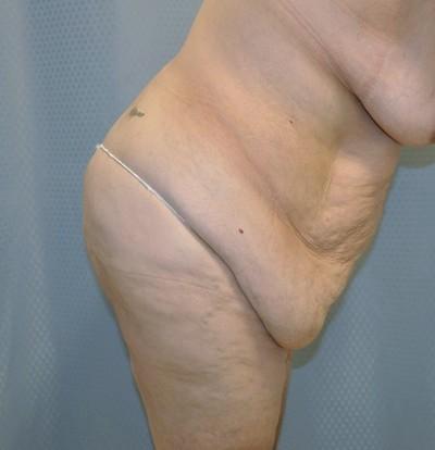 tummy-tuck-cosmetic-surgery-abdominoplasty-redlands-woman-before-bend-dr-maan-kattash