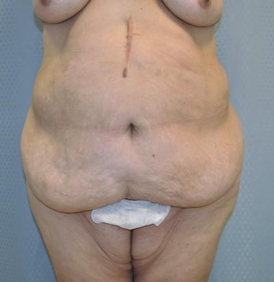 tummy-tuck-cosmetic-surgery-abdominoplasty-redlands-woman-before-front-dr-maan-kattash