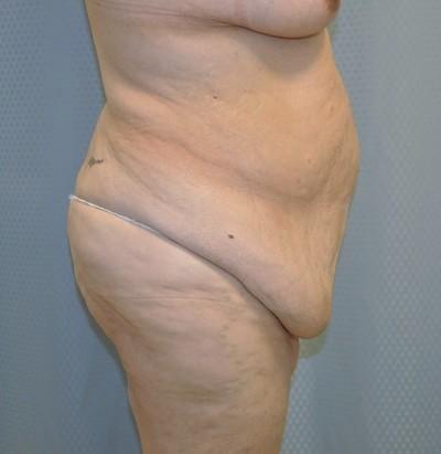 tummy-tuck-cosmetic-surgery-abdominoplasty-redlands-woman-before-side-dr-maan-kattash