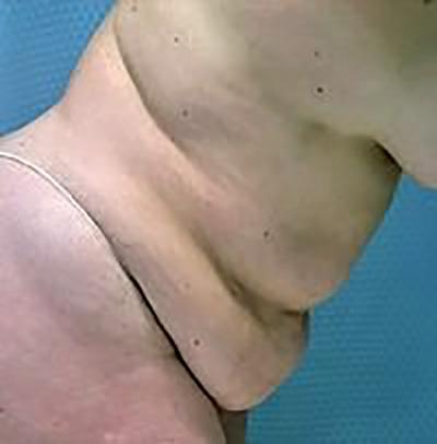 tummy-tuck-plastic-surgery-abdominoplasty-loose-skin-beverly-hills-woman-before-side-dr-maan-kattash