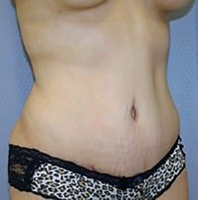 tummy-tuck-plastic-surgery-abdominoplasty-loose-skin-ontario-after-oblique-dr-maan-kattash