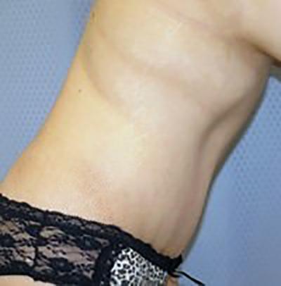 tummy-tuck-plastic-surgery-abdominoplasty-loose-skin-ontario-after-side-dr-maan-kattash