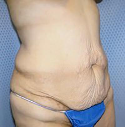 tummy-tuck-plastic-surgery-abdominoplasty-loose-skin-ontario-woman-before-oblique-dr-maan-kattash