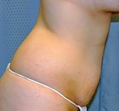 tummy-tuck-plastic-surgery-abdominoplasty-loose-skin-upland-woman-before-side-dr-maan-kattash